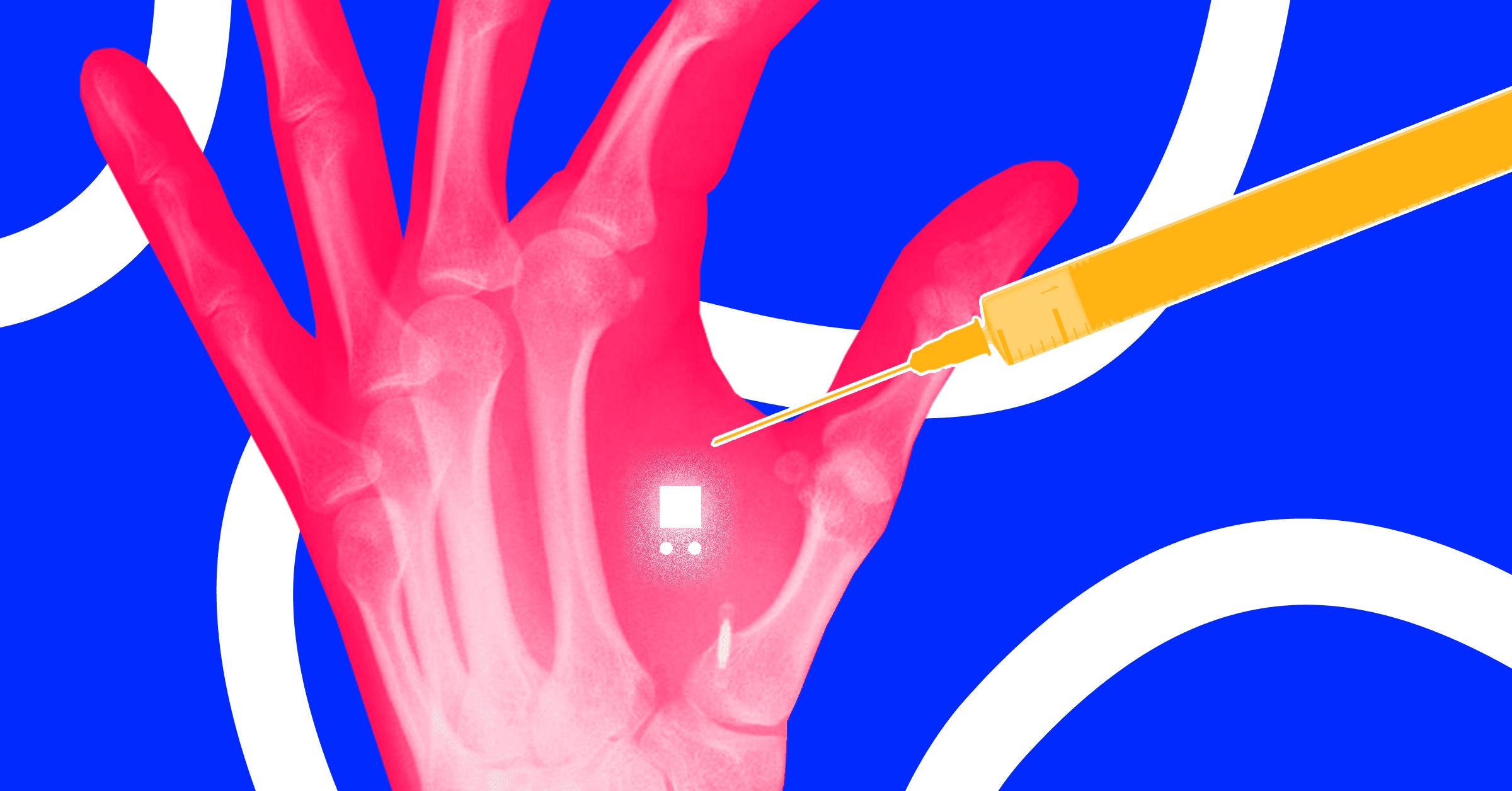 Reality around Falsehood of RFID Chip of Obama Care Program